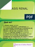 Litiasis Renal- urolitiasis
