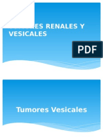 tumores renales y vesicales.ppt
