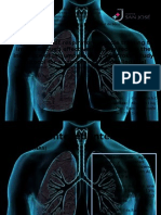 A Pilot Study of Respiratory Muscle Training To