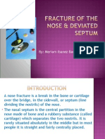 nose fracture and deviated septum