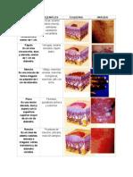 Lesiones en Dermatología