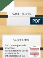 Nefro Vasculitis