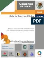 guia de practica clinica bloqueo Av