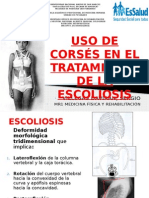 Uso de corsés en Escoliosis Idiopática