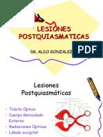 LESIONES POSTQUIASMATICAS.ppt