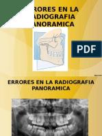 Clase Nª 2 Errores en La Radiografia Panoramica 16 de Abril Del 2015