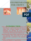 Tooth Preparation for Crown