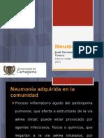 Neumonias Internet