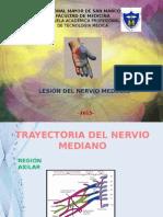 Lesion Del Nervio Mediano