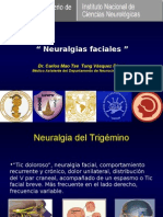 Neuralgias faciales