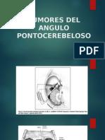 Tumores Del Angulo Pontocerebeloso