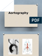 Aortography