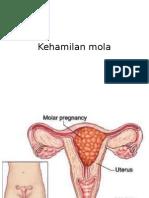 Kehamilan Mola