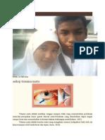 trauma okuli 2.docx