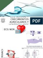 ECG Normal y Crecimientos Auriculares y Ventriculares