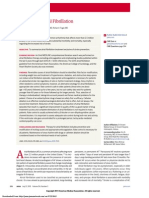 Atrial Fibrillation treatment
