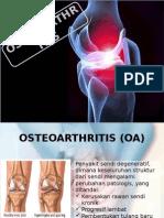 Penyuluhan Osteoartritis