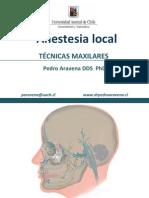 Odontología anesthesia maxillary nerve block
