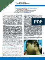 Síndrome de Reconstitución Inmune Por Tuberculosis