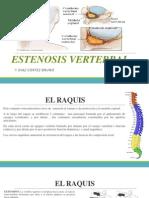 Estenosis Vertebral