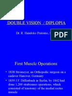 diplopia-RHP
