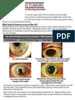 All-About-Iris-Tumors-Dr.-Schefler1.pdf