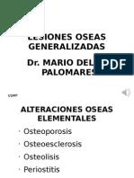 Lesiones Oseas Generalizadas-md