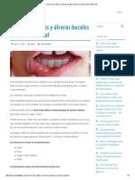 Cómo Curar Aftas y Úlceras Bucales