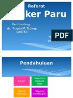 print referat Kanker paru.ppt