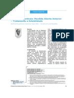 Displasias Verticais- Mordida Aberta Anterior – Tratamento e Estabilidade