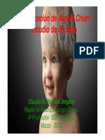 Malformación de Arnold Chiari