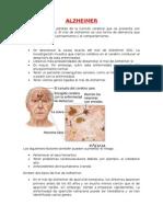 Alzheimer Doccc
