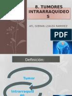 tumores-intraraquideos