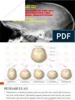 Craniosynotosis Pp
