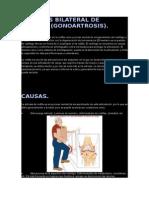 Artrosis Bilateral de Rodilla