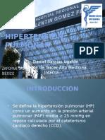hipertensionpulmonar-121026175955-phpapp02