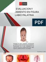 Evaluacion y Tratamiento en Fisura Labio Palatina