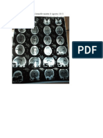 CT Scan Kesan Infark Serebri Hemisfer Sinistra