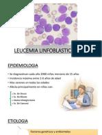 LEUCEMIA-LINFOBLASTICA-AGUDA