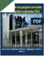 Anatomía Radiológica de Ganglios Cervicales