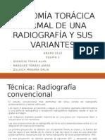 Anatomía Torácica Normal de Una Radiografía