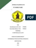 Referat Tumor Paru