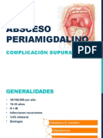 Absceso Periamigdalinoo
