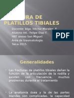 Fx Platillos Tibiales