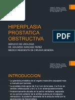 HIPERPLASIA PROSTATICA OBSTRUCTIVA