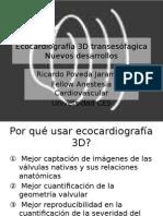 3D Echocardiography New Developments