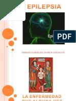 presentacion epilepsia