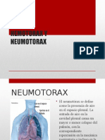 Neumotorax y hemotorax