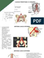 Arterias Iliacas Primitivas o Comunes