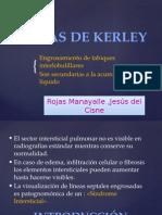 Líneas de Kerley